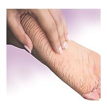 Include nappy rash  Heels cracked foot