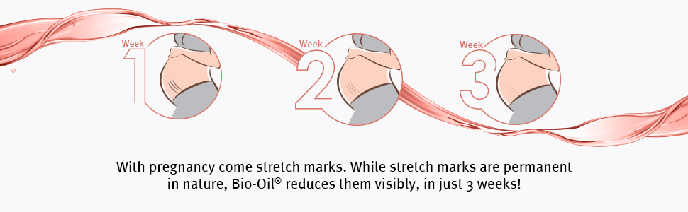 biooil for pregnancy stretch marks,bio oil,bio oil for stretch marks and scars,bio oil,massage oil