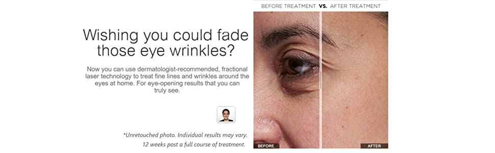 Tria Beauty Age-Defying Eye Wrinkle Correcting Laser - FDA cleared -  younger looking skin in as little as 2 weeks