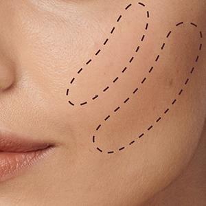Il Cancella Età, Instant Eraser, Correttore, Occhiaie, Spugnetta,naturale, leggero, colore, share