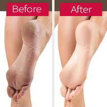Heals Chapped, Dry, and Cracked Hands and Feet