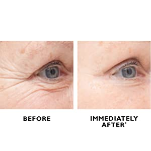 Peter Thomas Roth, Instant FIRMx Eye Temporary Eye Tightener, usage, b&a, before and after