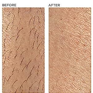 leg body hair removal reduction permanent comparison ilight ipl
