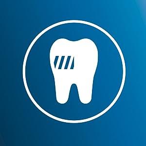 歯垢をしっかり除去