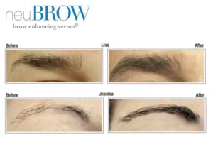 neubrow before and after