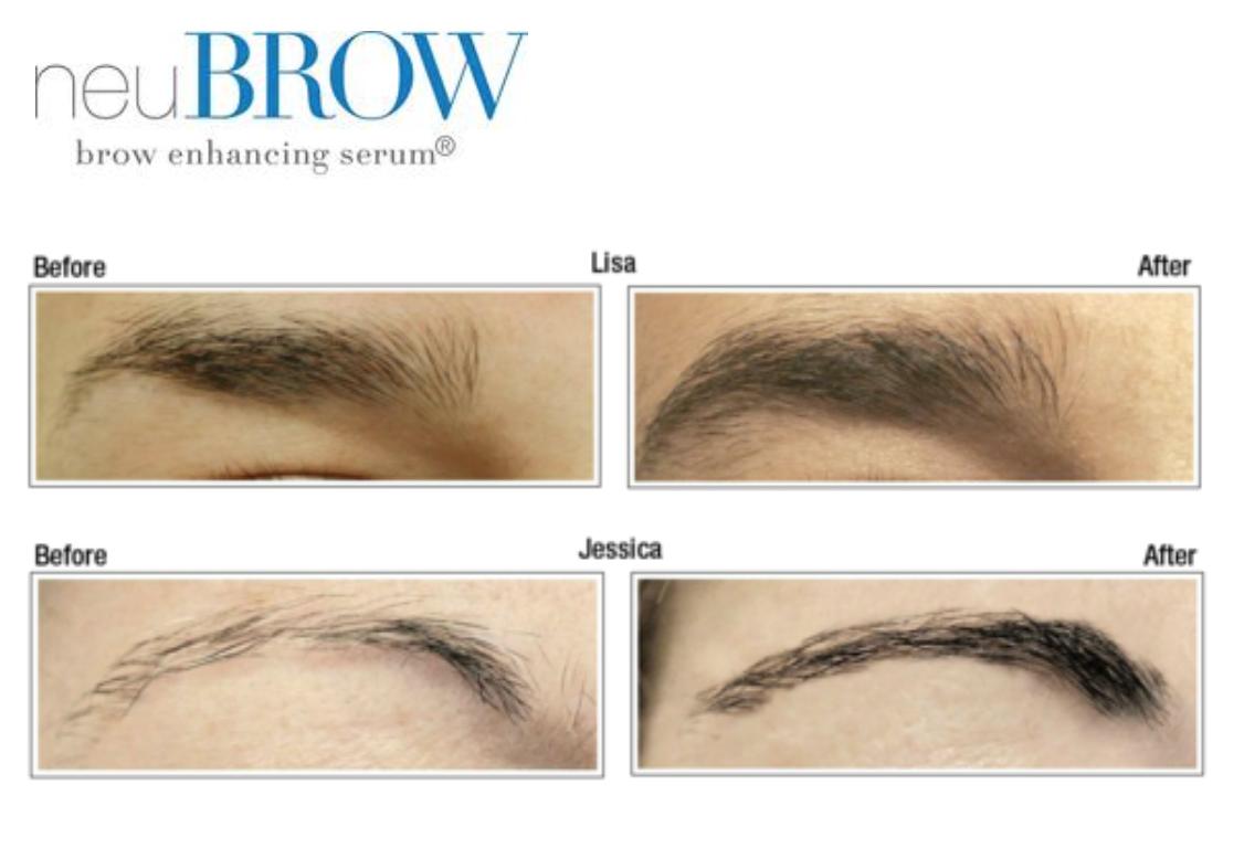 Amazon Skin Research Laboratories Ad528 Neubrow Brow Enhancing