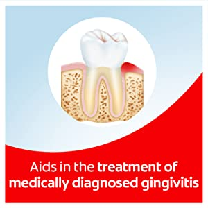 Aids in the treatment of medically diagnosed gingivitis