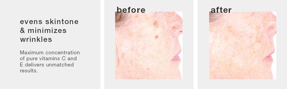 vitamin c serum, potent vitamin c, pigmentation serum, hyperpigmentation, freckle reducer