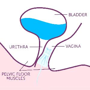 Help Stop Bladder Leaks Before They Happen
