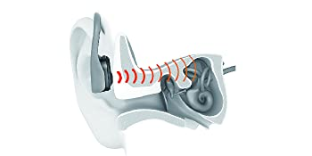technologie brevetée de conduction osseuse avancée