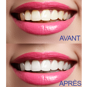 Blanchiment des dents dentaire Lovely Smile Ray of Smile Blanchisseur dentaire Professionel