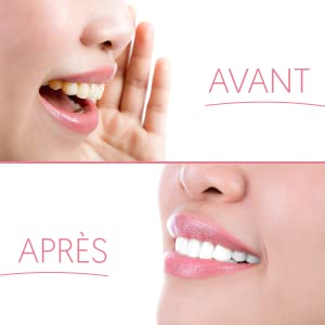 stick dent blanche ; patch dents blanche ; white smile ; white teeth ; blancheur dent