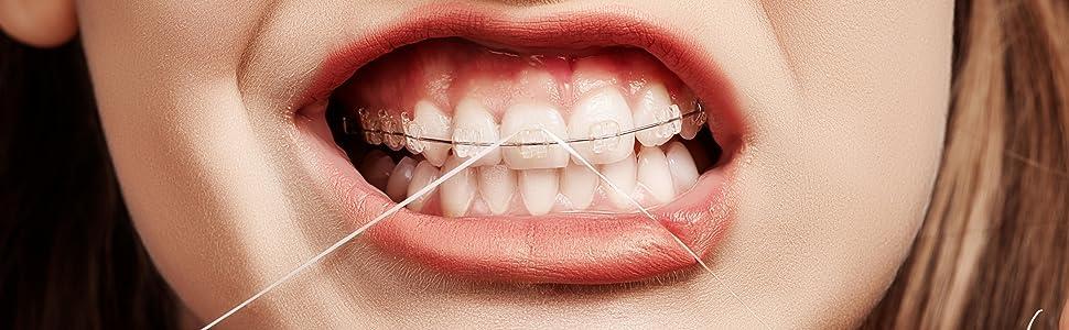 Flosser Wars. Water Flosser for implants  Water Flosser for braces Alternative to dental floss