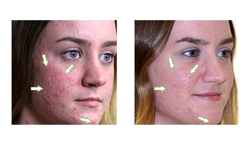 Omiera Acdue Acne Scar Remover, Acne Scar Cream, Dark Spot Corrector, Acne  Spot Treatment, and Scar Treatment Cream, 15 grams