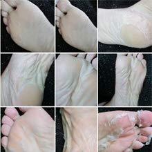 feet peel mask