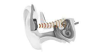 modernste, patentierte Bone-Conduction-Technologie