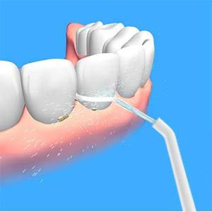 Elektrischer Zahnlocher tragbare Zahnaufhellung Zahnreiniger