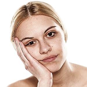 Erfrischung Hautbild Teint, Durchblutung Gesichtshaut, strahlend frisch, Dermaroller, Hautbild