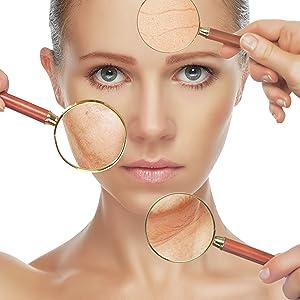 Fettige Haut, raue Hautstruktur, Hyperpigmentierungen, Altersflecken, Raucherhaut Haarausfall