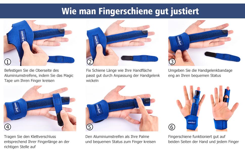 Tolle Fingerknöchel Ziehen Galerie - Schaltplan-Ideen - mesoul.info