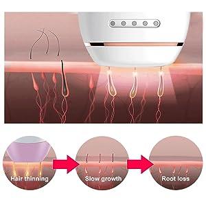IPL la depilación,Depilación permanente,Depiladora de luz pulsada ...