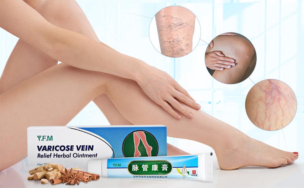 YFM Tratamiento de Venas Varicosas, Cera para Venas Varicosas - Plantas Tradicionales Chinas, Promover la Circulación Sanguínea