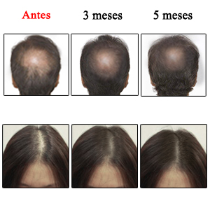 Promueve el crecimiento del cabello mediante la estimulación de los folículos pilosos a fin de mejorar la pérdida de cabello y la calvicie.