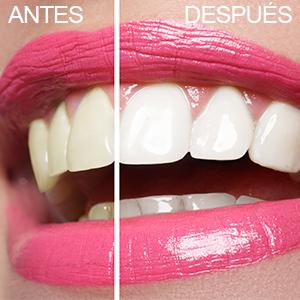 Blanqueador Dental Bandas Blanqueadoras Dientes Blanqueamiento tiras whitestrips white stripes crest