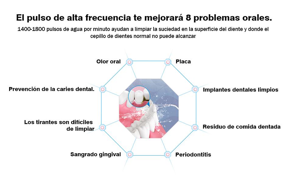 Irrigador Bucal Portátil,TOPVORK Profesional Irrigador Dental ...