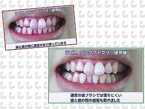 間 ブラシ 臭い 歯 歯や歯茎の間に隙間があると臭いの元になる?専門医が詳しく解説します