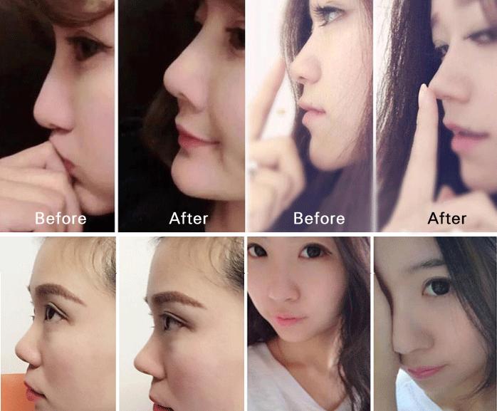 整形 鼻 韓国 韓国での鼻整形の費用は?韓国の鼻整形で有名なクリニック情報まとめ
