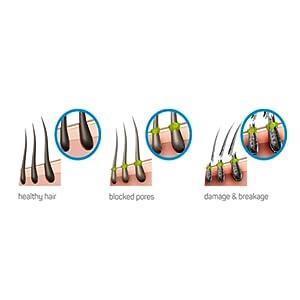 scalp blockage hard water