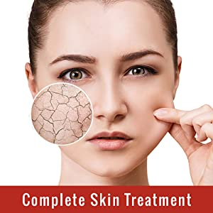 Complete Skin Treatment