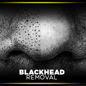 charcoal face mask, peel off mask, blackhead removal, peel off mask for men, charcoal mask, charcoal