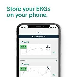 Store EKG