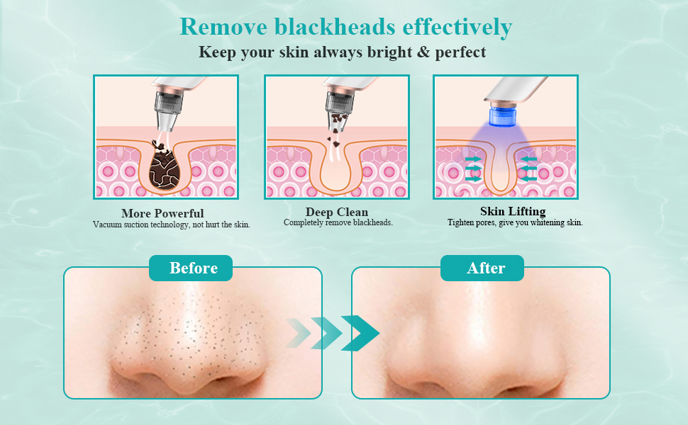 Remove acne blackhead grease