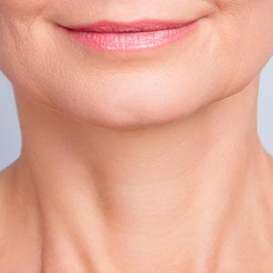 remove neck wrinkles