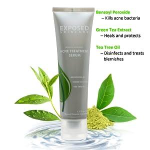 Exposed Skin Care Acne Treatment Serum