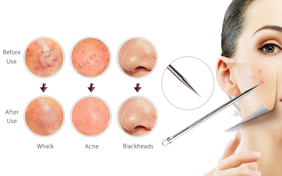 Image result for Acne removal tools