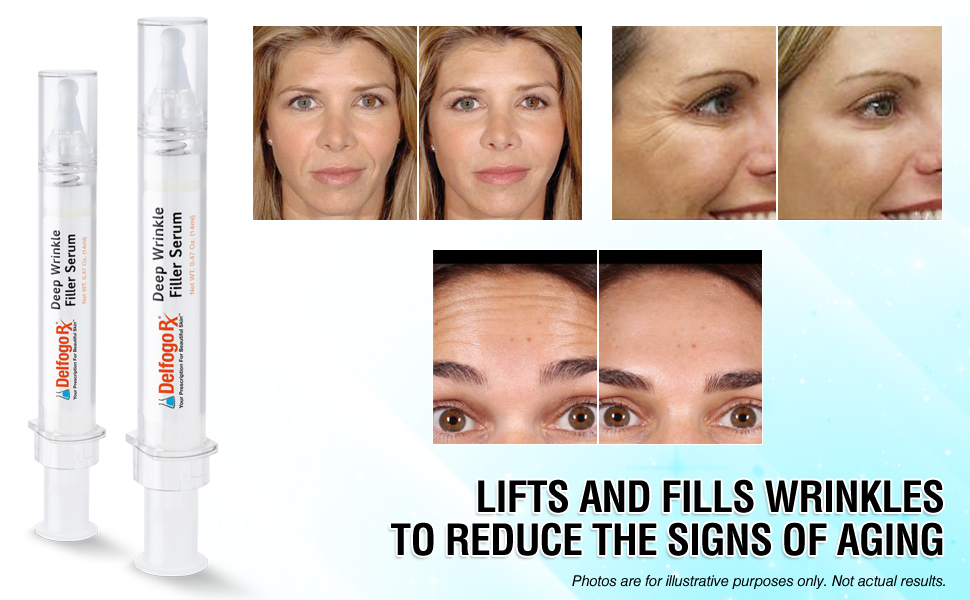 Deep Wrinkle Filler Serum Syringe | Delfogo Rx (Medical Grade) Collagen  Derma Filler Treatment |