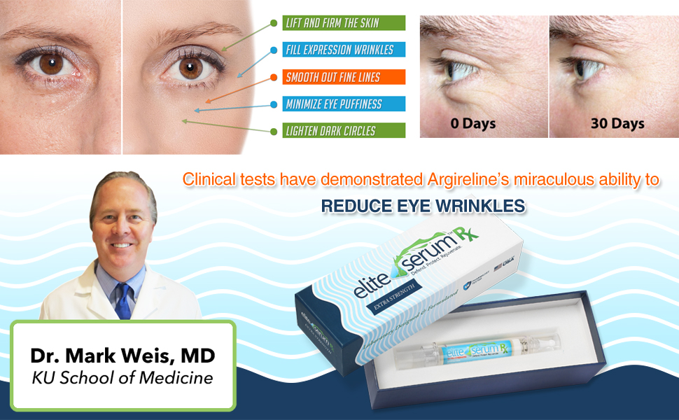 Fat P Around The Eyes Start Drooping As Muscle And Skin Holding Them Up Weakens These Aculate To Form Eye Bags