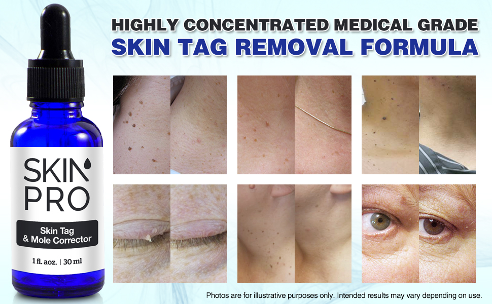 Amazon Com Skinpro Skin Tag Remover And Mole Corrector For Fast
