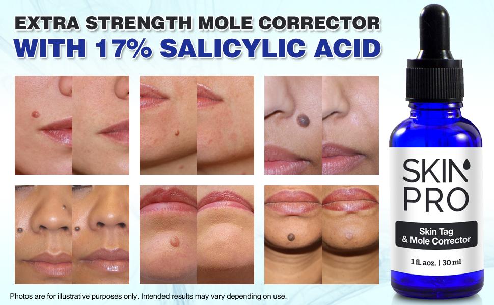 Amazon Com Skinpro Skin Tag Remover And Mole Corrector For Fast