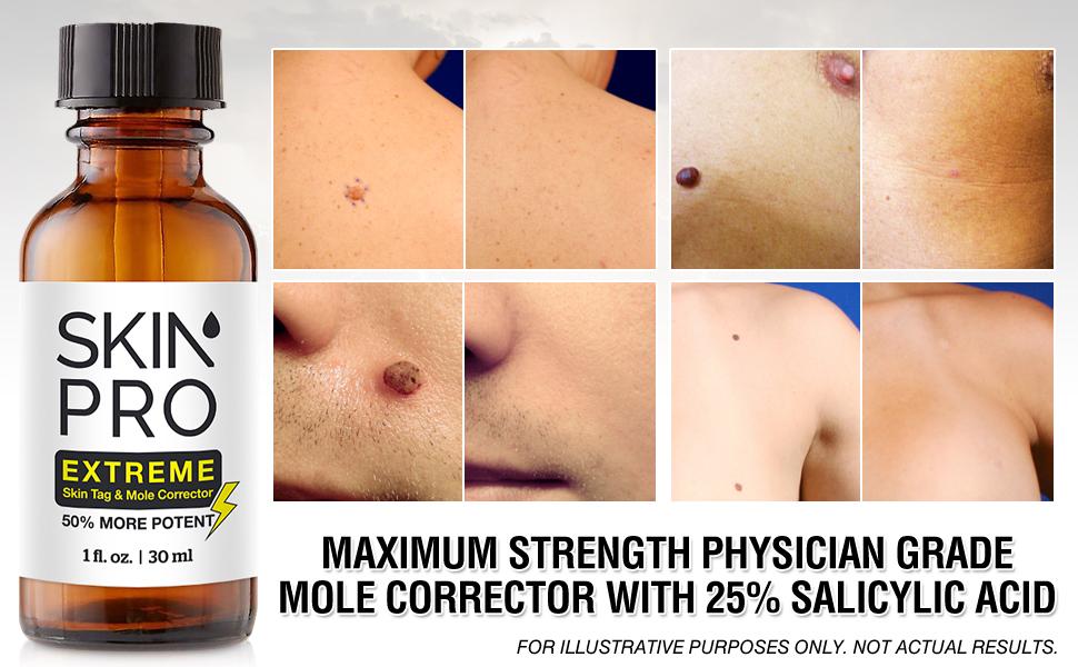 amazon com skinpro extreme skin tag remover \u0026 mole corrector fastphysician level 3 formula that targets deep mole correction, wart \u0026 skin tag removal