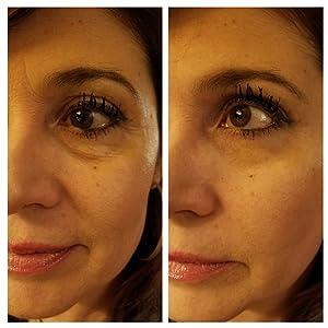 anti aging  cream instant ageback puffy eyes youthful rejuvenate