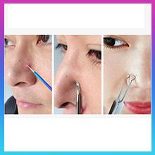 Acne Pimple Removal