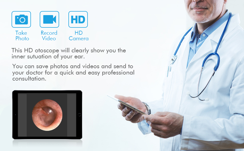 video otoscope