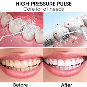 Water Pik Teeth Cleaner