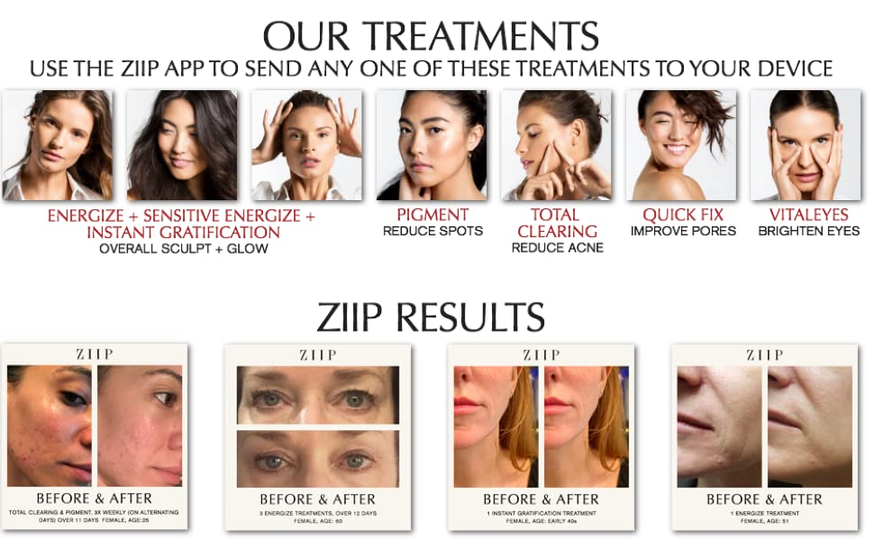 ZIIP Beauty Microcurrent Facial Device - Microcurrent Face Lift Machine For  Lifting, Sculpting, and Skin