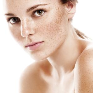 Dark Spot Corrector for Face – Vitamin C Serum with Vitamin E &  Breakthrough Anti Aging Skin Care
